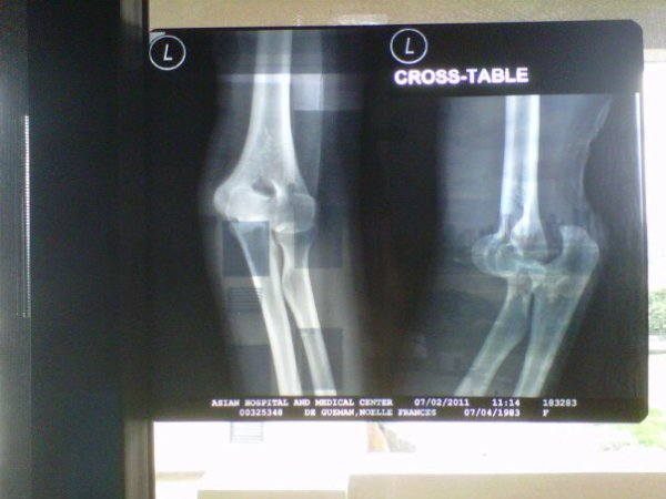 Freak Accident:X-Ray